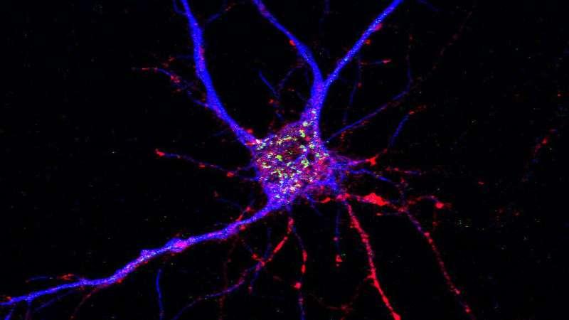 Drug target for Alzheimer's disease has dual action