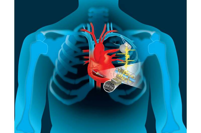 Engineers harvest heart's energy to power life-saving devices