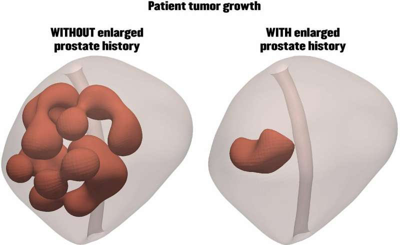 Enlarged prostate could actually be stopping tumor growth, simulations show