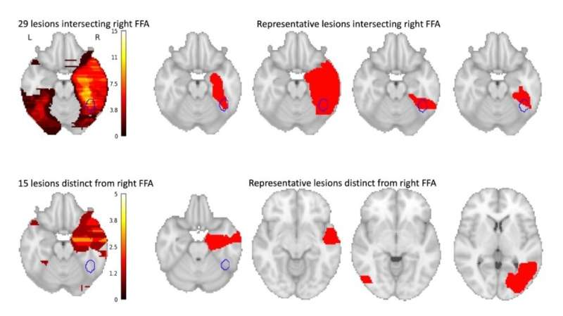 'Face blindness' may involve a failed brain network, and could shed light on autism