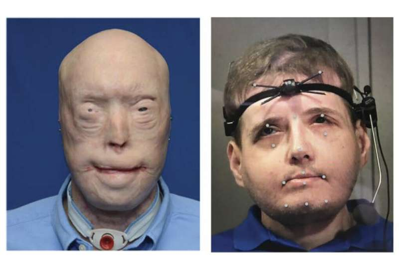 Face transplant surgery can improve speech in victims of severe face trauma