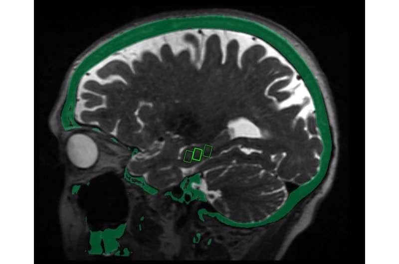 Focused ultrasound may open door to Alzheimer's treatment