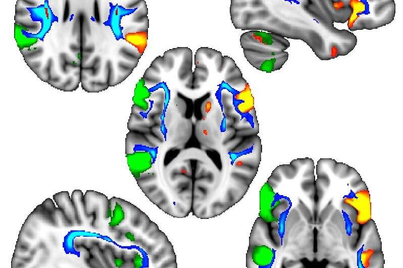 Genetic regions associated with left-handedness identified