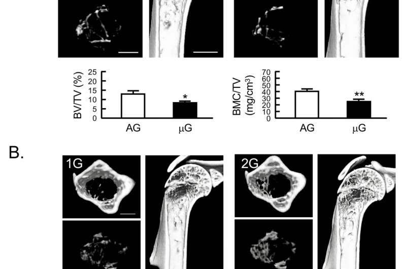 Gravity changes mass of muscles and bones, which was experimentally observed in space