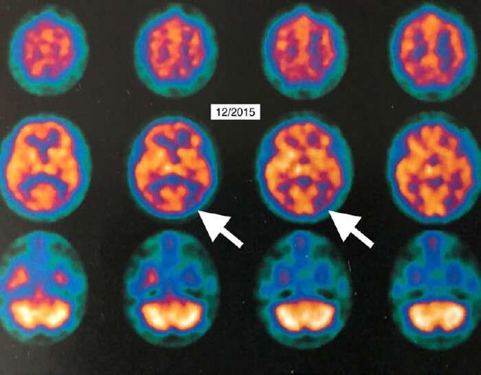 HBOT showed improvement in Alzheimer's Disease