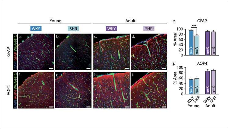 Healthy blood vessels may delay cognitive decline