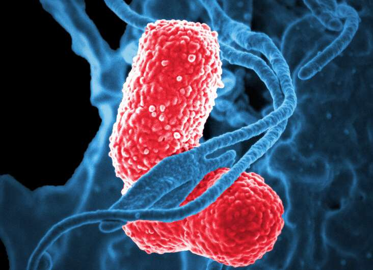 Human contact plays big role in spread of some hospital infections, but not others