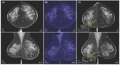 Imaging results, health data combine in AI model to predict breast cancer