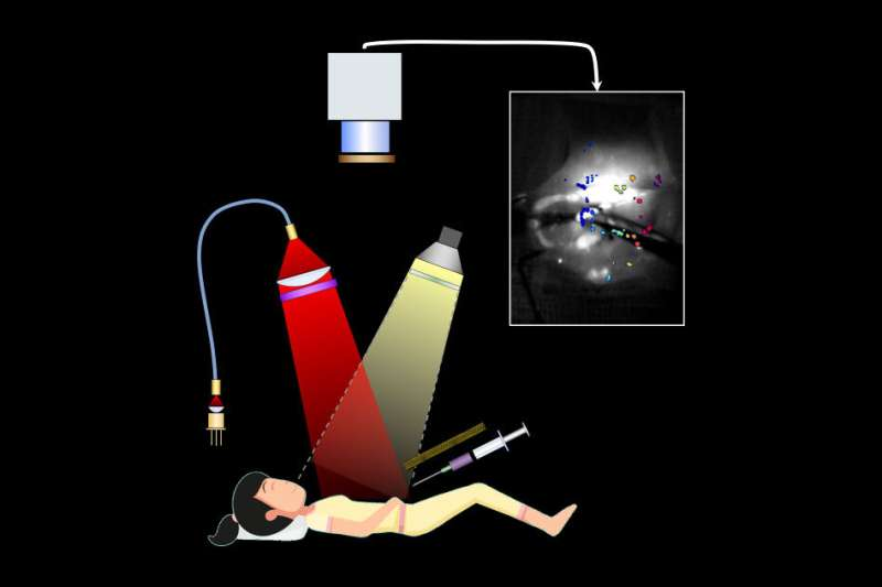 Imaging system helps surgeons remove tiny ovarian tumors