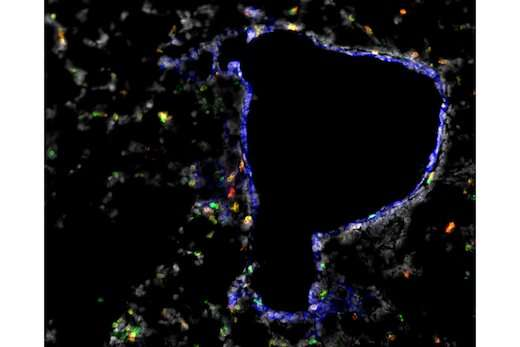 Immunologists identify T cell homing beacons for lungs