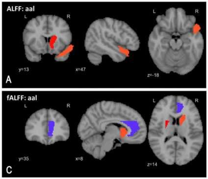 Improved AI-based tool increases accuracy of schizophrenia diagnosis