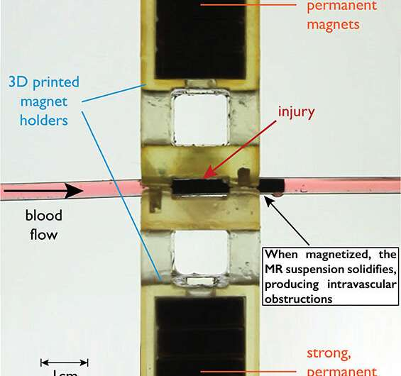 Injection of magnetizable fluid could extend trauma patients' survival time