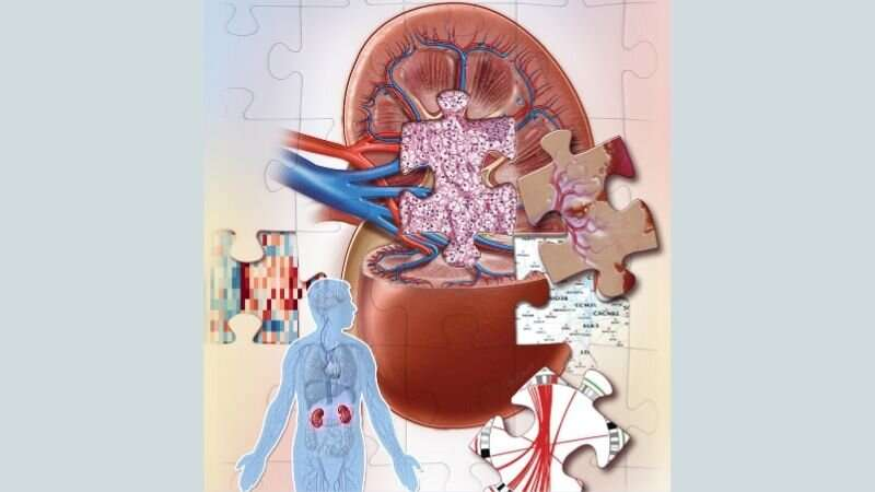 Kidney cancer study uncovers new subtypes and clues to better diagnosis and treatment