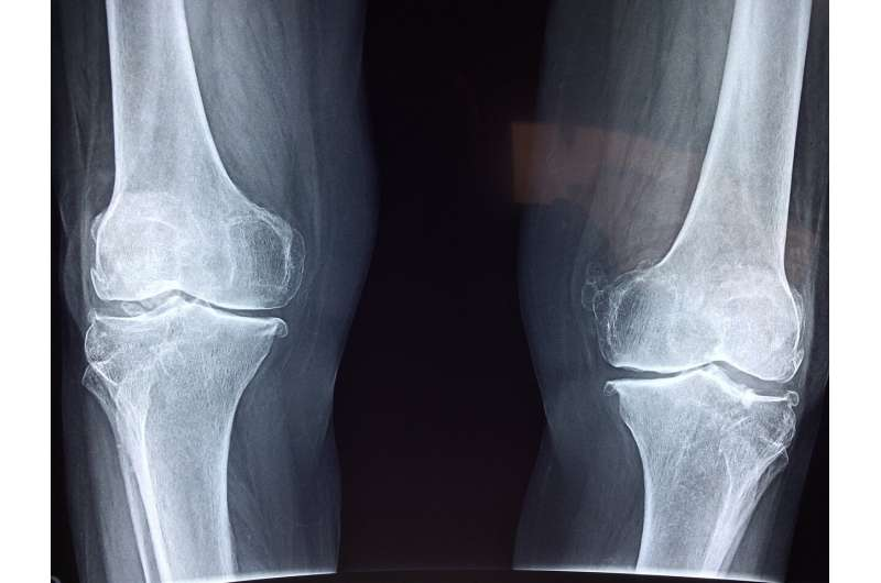 knee cartilage