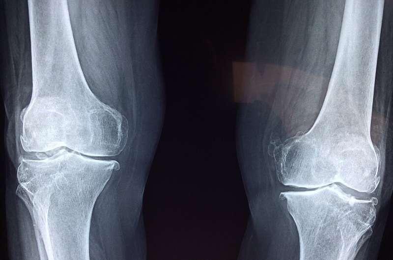 knee cartilage
