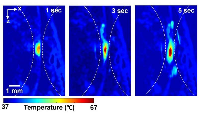 Light and sound gauge the temperature of deep tissues