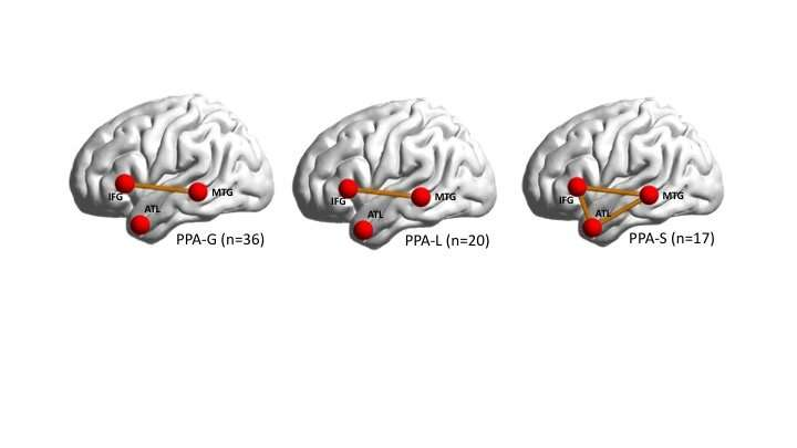 Map of broken brain networks shows why people lose speech in language-based dementia