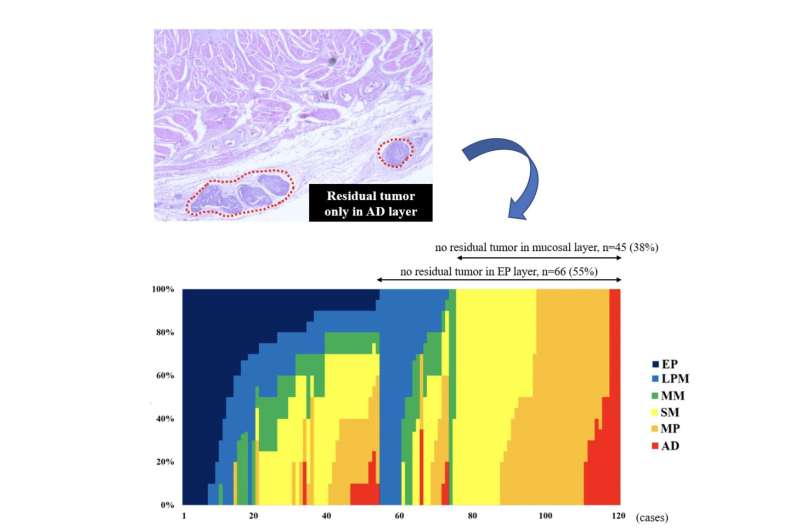 Mapping residual esophageal tumors -- a glimpse into the future?