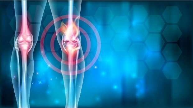 Mast cells crucial to causing osteoarthritis