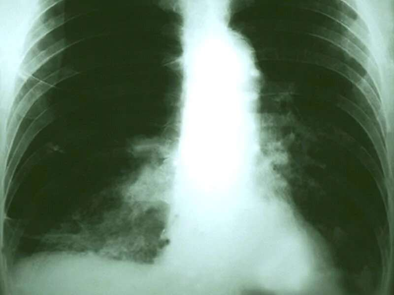 Medicaid coverage for lung cancer screening all over the map