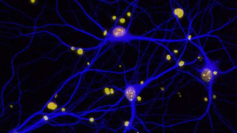 Modified protein can prevent Alzheimer's disease in mice