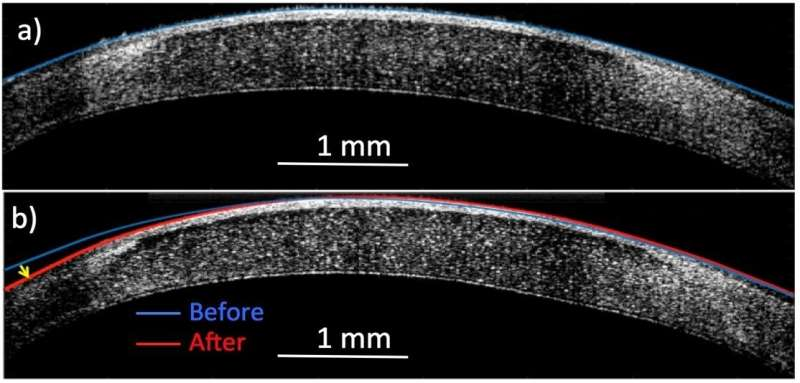 'Molecular surgery' reshapes living tissue with electricity but no incisions