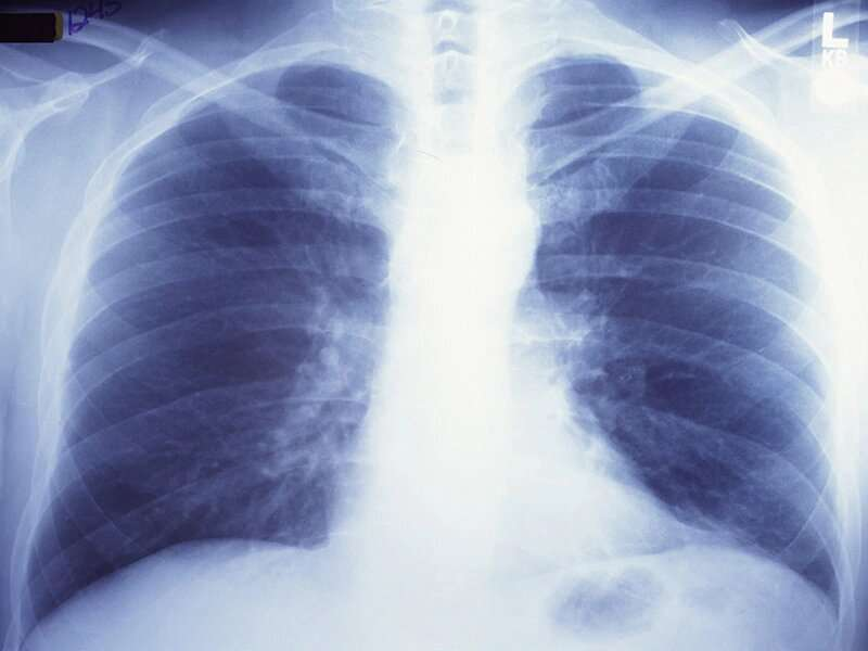 Nasal swab could help gauge smokers' odds for lung cancer