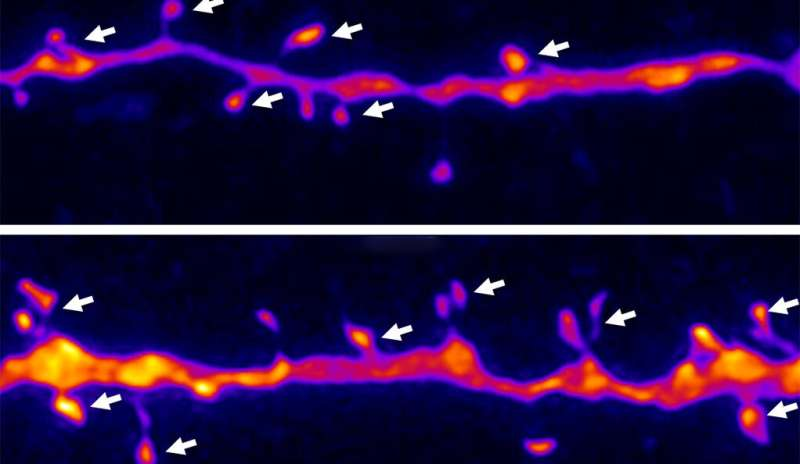 New drug mimics benefits of ketamine for depression