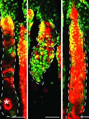 New hair follicles can corral skin cancer