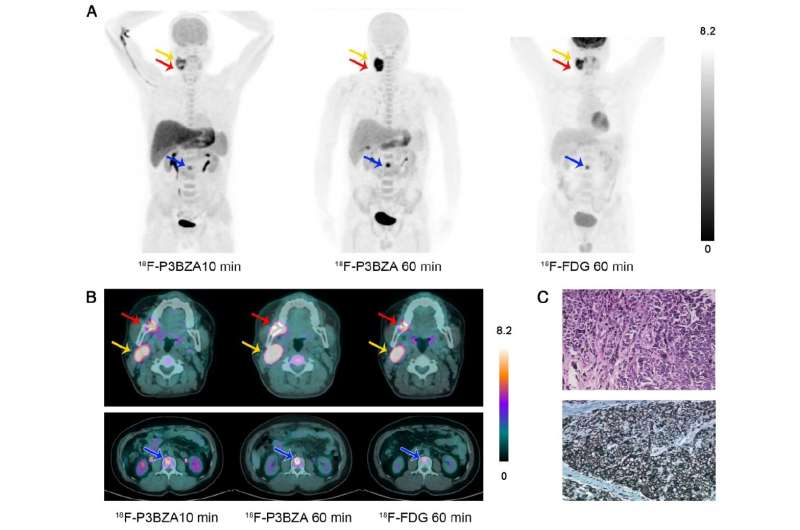 New PET probe could improve detection of primary and metastatic melanoma