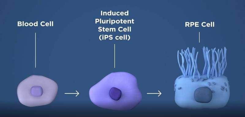 NIH researchers rescue photoreceptors, prevent blindness in animal models of AMD