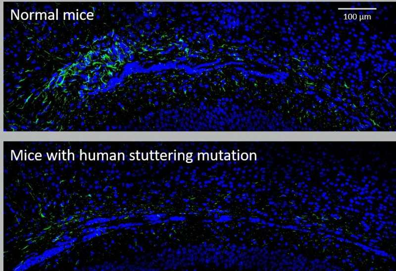 NIH study in mice identifies type of brain cell involved in stuttering