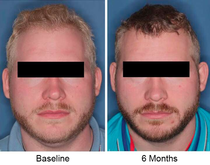 Nitisinone increases melanin in people with albinism