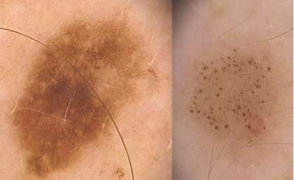 Numbers count in the genetics of moles and melanomas