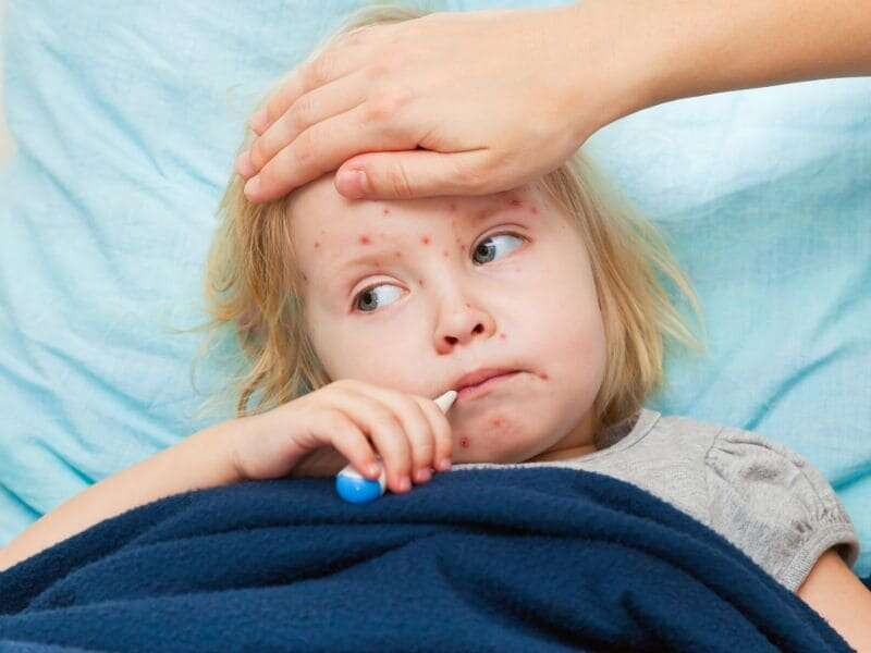 Parents, protect your kids as measles outbreaks spread