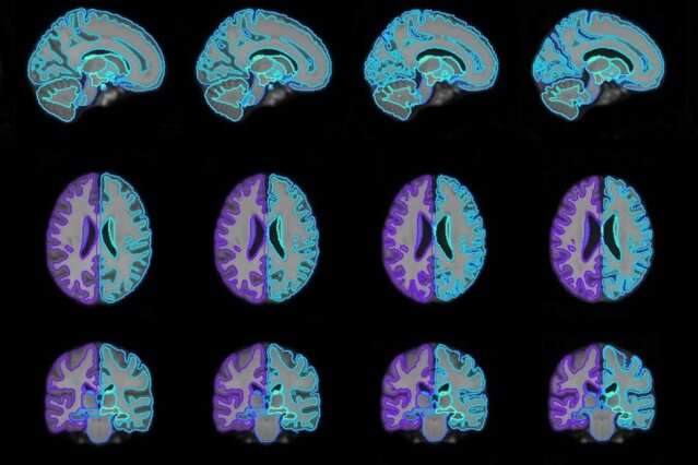 Producing better guides for medical-image analysis