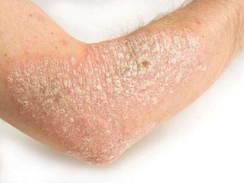 Psoriasis symptoms, quality of life tied to disease severity