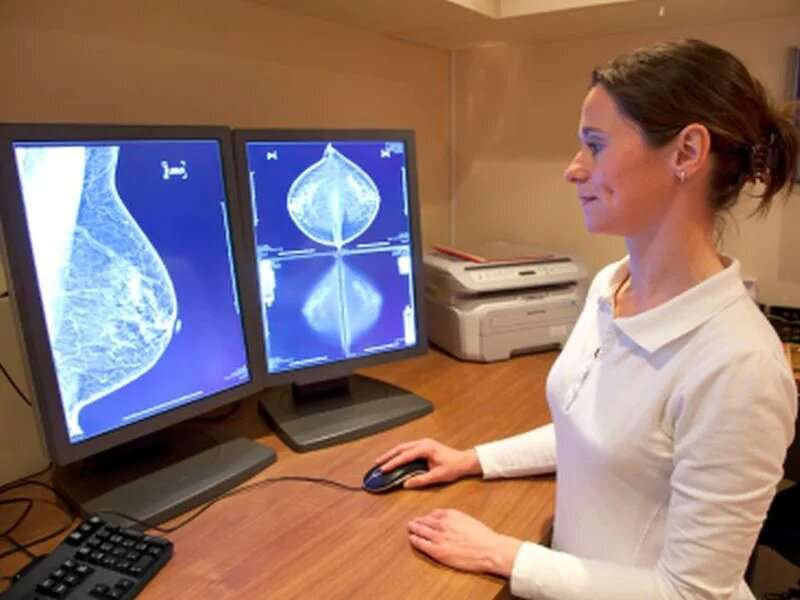 Recall down, cancer detection up with digital breast tomosynthesis
