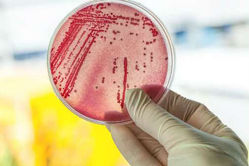 Scientists establish new way to test for drug resistant infections