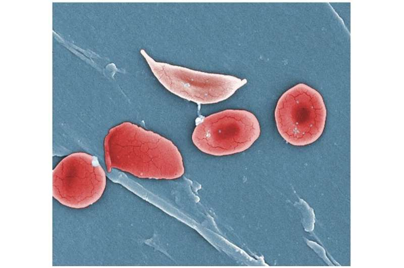 Sickle cell disease needs more attention