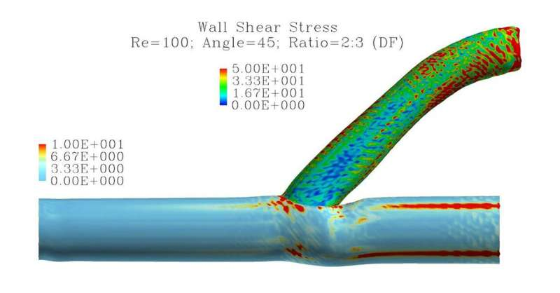 Simulations characterize turbulence caused by common connection for dialysis