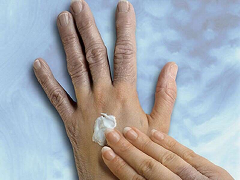 Skin-lightening cream could cause nerve damage, CDC report warns