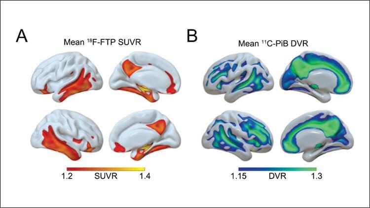 Sleep history predicts late-life Alzheimer's pathology