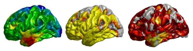 Smoking, high blood pressure, diabetes and obesity each linked to unhealthy brains