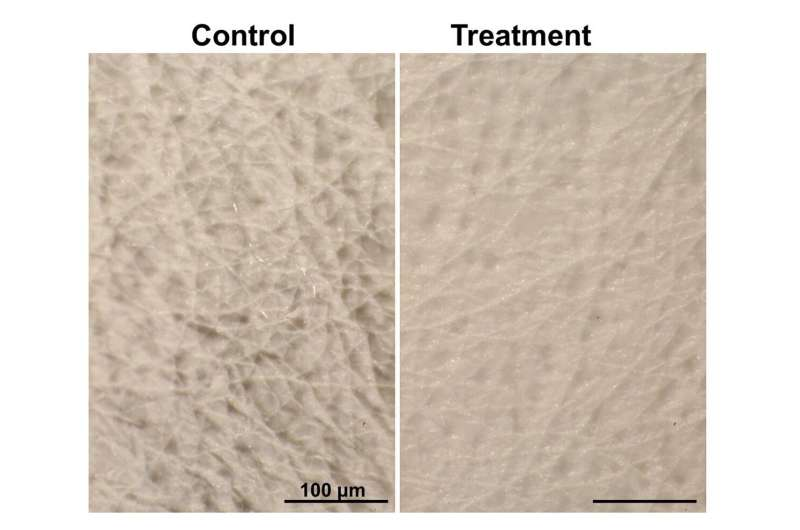 Smoothing wrinkles in mice -- without needles