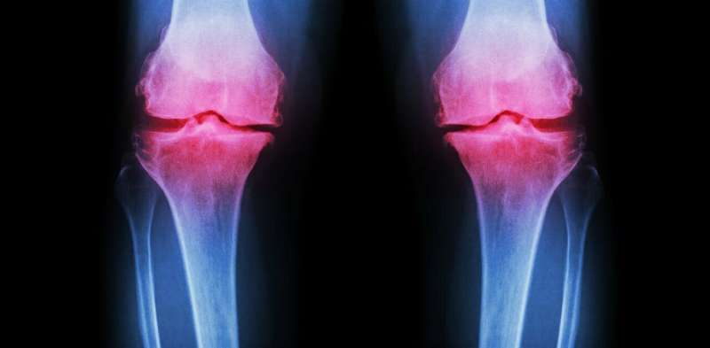 Stem cell treatments for arthritic knees are unproven, expensive and potentially dangerous