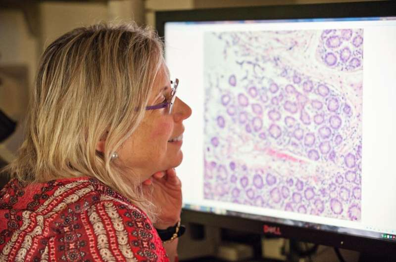 Study: Aggressive breast cancers store large amounts of energy, which enables it to spread