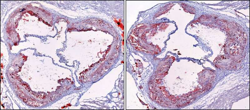 Study helps solve mystery of how sleep protects against heart disease