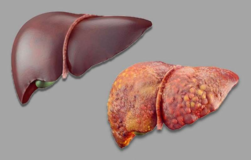 Study shows artificial intelligence can detect language problems tied to liver failure