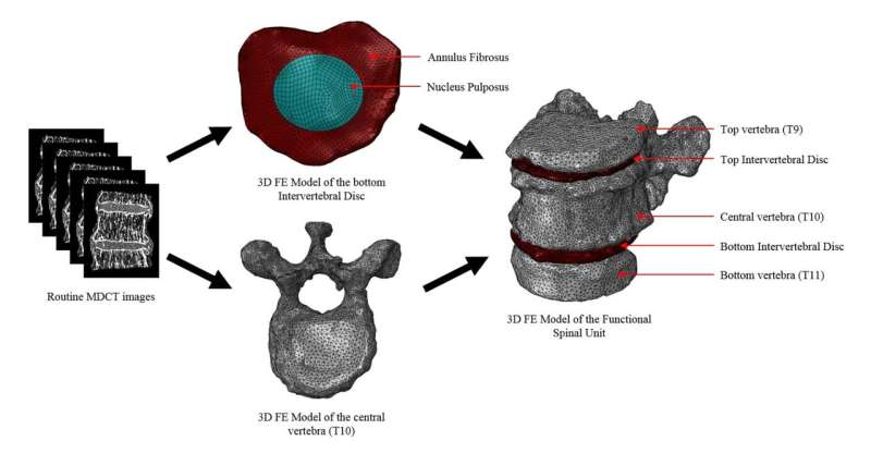 SUTD and collaborators developed novel methodology to predict spinal fractures in patients